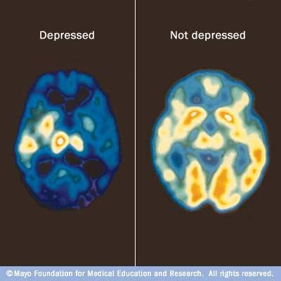 my00238_im00356_c7_pet_depressionthu_jpg.ashx